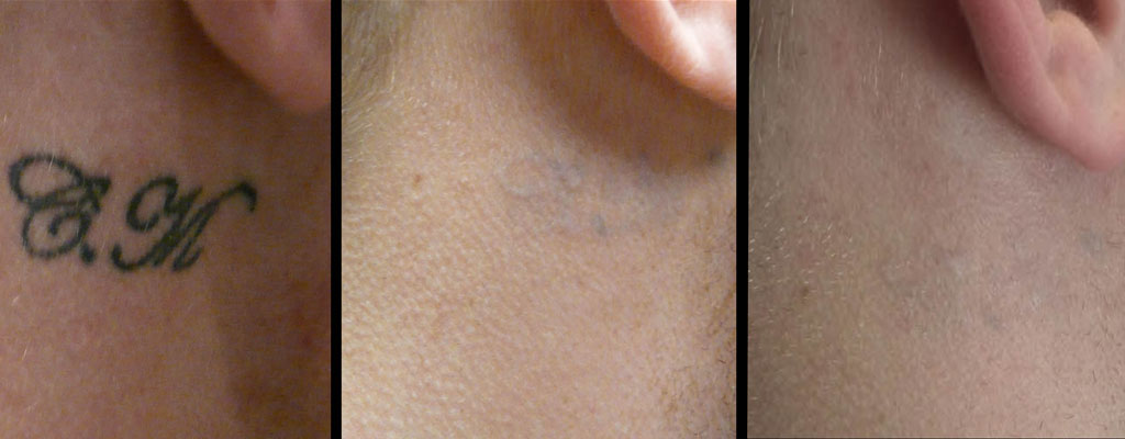Eclipse lasers ltd laser tattoo removal for Tattoo removal lasers